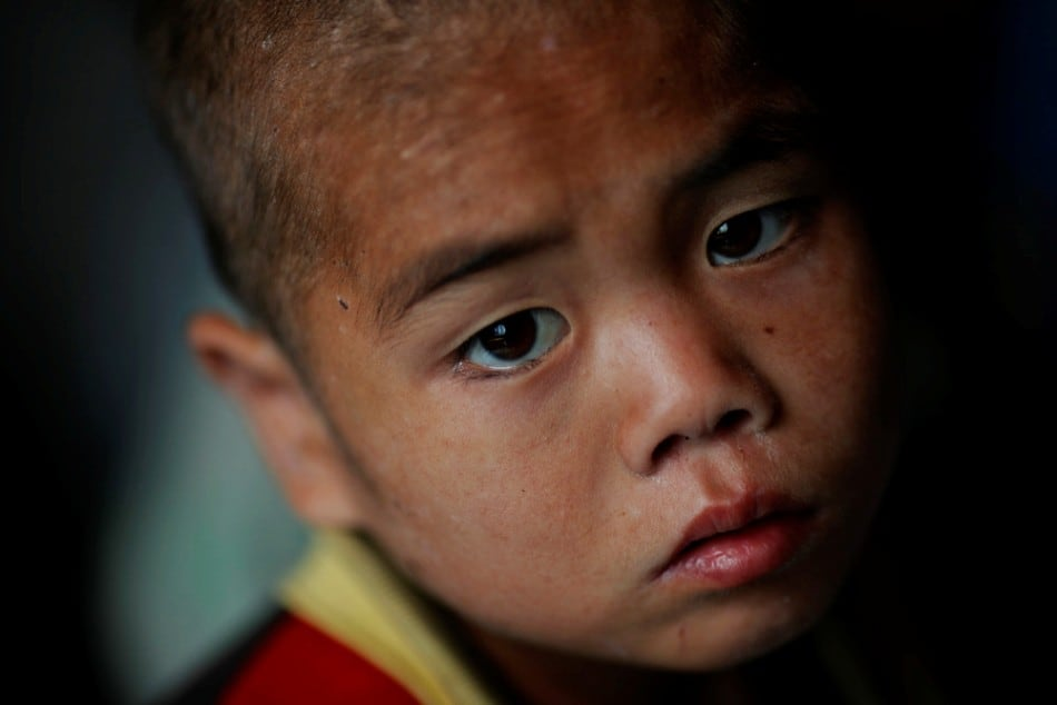 A North Korean child waits to be examined for possible signs of malnutrition in an orphanage in an area damaged by summer floods and typhoons in South Hwanghae province, October 1, 2011. (Photo by Damir Sagolj/Reuters)