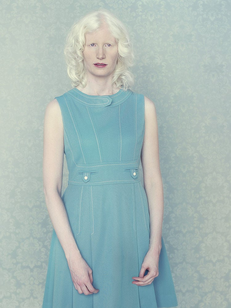Stunning Portraits of Albinos by Gustavo Lacerda -portraits, photo-project