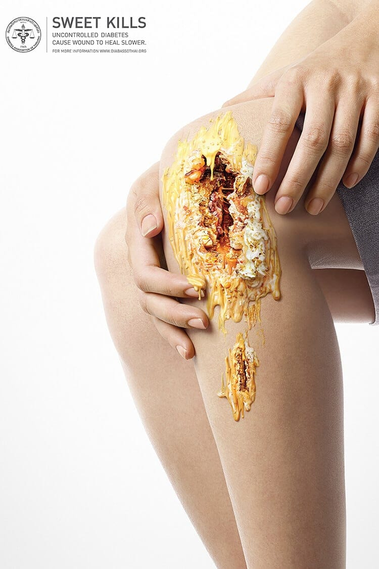 sweet kills fy 6 - Sweet Kills: Deliciously Creepy Ads Showing What Too Much Sugar Can Do to Our Bodies